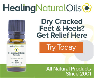 Amoils H-Cracked Heels Review Essential Oil Benefits