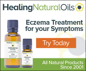 reat Eczema Symptoms Gently - Topical Homeopathic Eczema Remedy For All Ages