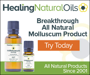 Molluscum Treatment For Your Symptoms. All Natural, Topical Homeopathic Product