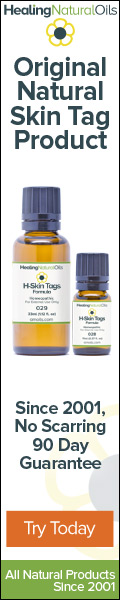 Remove Your Skin Tags With H Skin Tags Today!