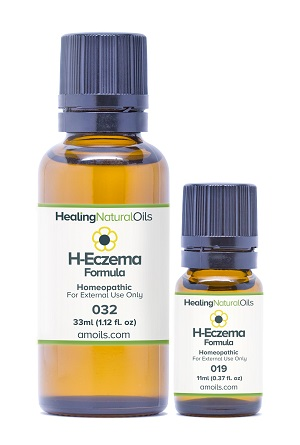 Treat Eczema Symptoms Gently - Topical Homeopathic Eczema Remedy For All Ages