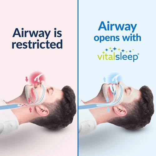 VitalSleep anti-snoring device