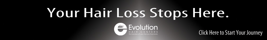 Your Hair Loss Stops Here