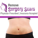 Remove Surgery Scars