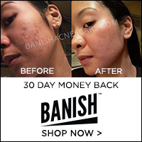 Build Collagen to Get Rid of Acne Scars with BanishAcneScars.com