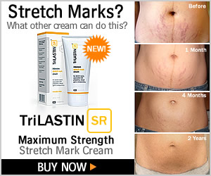 How To Get Rid Of Ugly Stretch Marks
