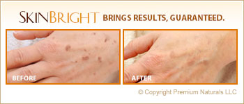 How to Get Rid Of Age Spots On Hands